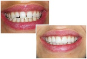 Brentwood Center for Cosmetic Dentistry Los Angeles CA